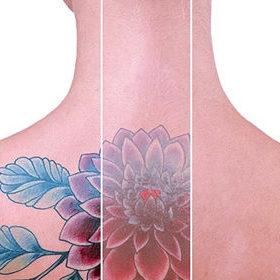 corpo-bueno-remocao-tatuagem-420x280