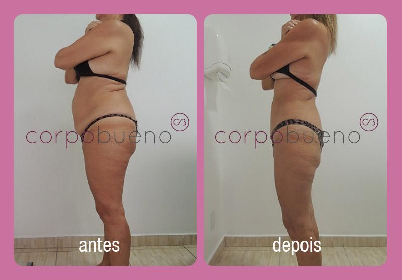 corpo_bueno_tratamentos_antes_depois_002