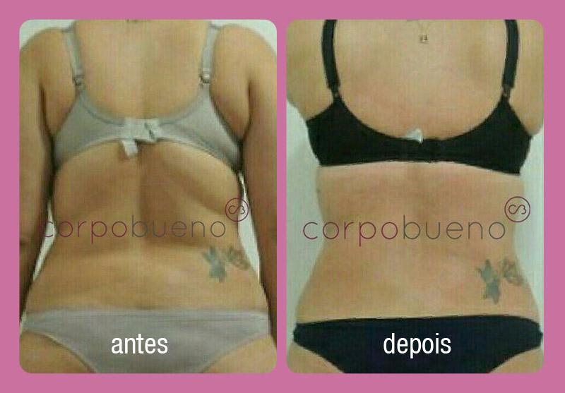 corpo_bueno_tratamentos_antes_depois_019